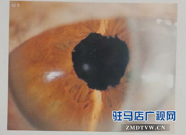 脱贫后,患眼疾20多年重见光明