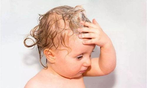 宝宝头发少 家长不必愁
