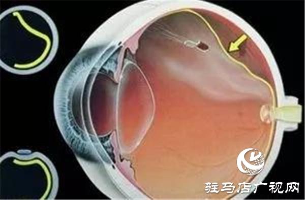 一只眼睛视网膜脱落,另一只也会脱落吗
