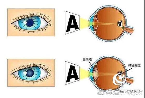 6·6爱眼日 | 关注普遍眼健康